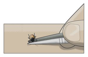 Digital illustration showing removal of tick from human skin using tweezers